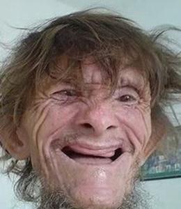 Mark w-o Dentures
